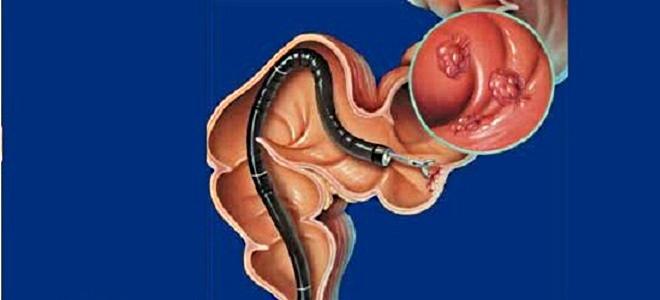 Боли в кишечнике после колоноскопии