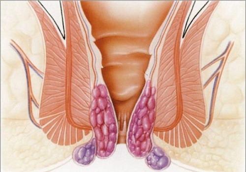 Строение геморроидальных узлов