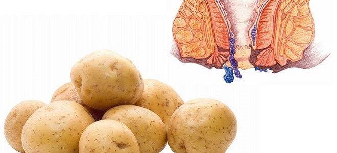 Помогает ли картошка от геморроя
