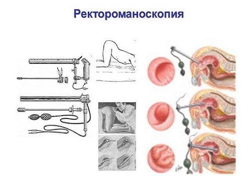 Выполнение ректороманоскопии